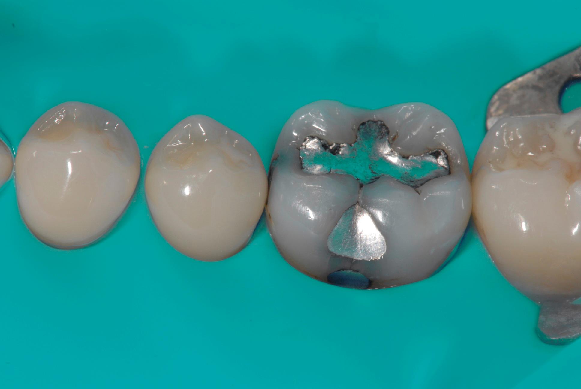 OTTURAZIONI DENTALI / INTOSSICAZIONE DA MERCURIO | Studio Dentistico Fonasiero a Vigonza
