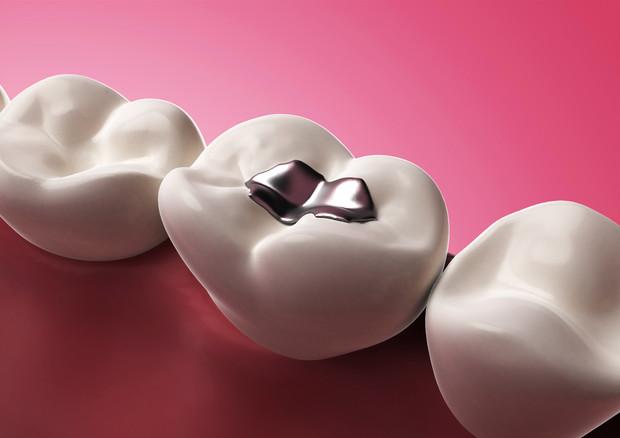 OTTURAZIONI DENTALI / INTOSSICAZIONE DA MERCURIO | studo dentistico fornasiero a Vigonza